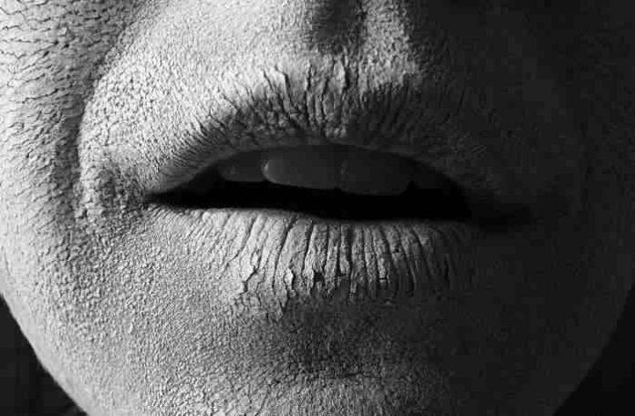 Was tun bei spröden, aufgesprungenen und rauen Lippen?