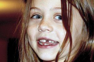 Zahngesundheit trotz Zahnlücke nur als Kind