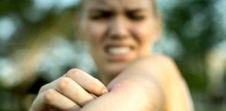 Darum ist eine Insektengiftallergie so gefährlich